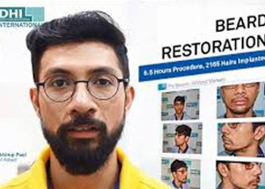 Beard Restoration Klinik Farmanina