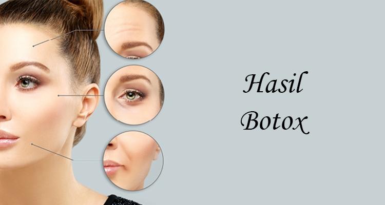 Hasil Botox