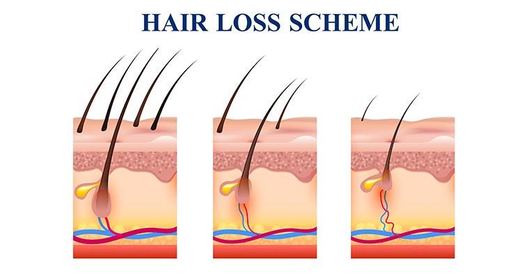 Perawatan Rambut PRP Treatment