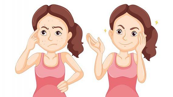 Inilah Langkah Tepat Dalam Tips Obati Jerawat Untuk Anda!