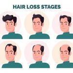 Mengenal Perawatan Rambut PRP Treatment untuk Kebotakan Dini