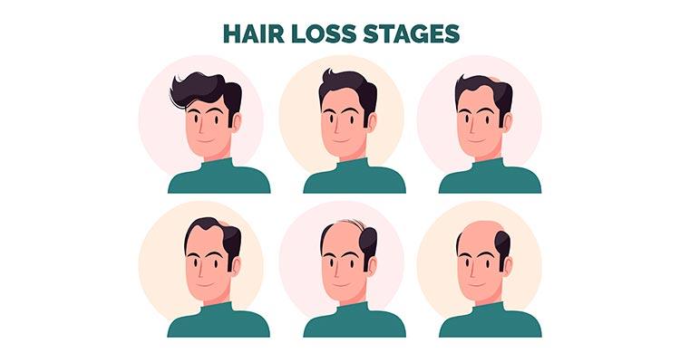 Mengenal Perawatan Rambut PRP Treatment