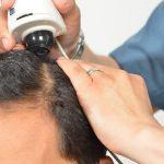 8 Fakta Rambut Yang Perlu Anda Tahu