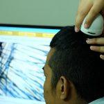 Ketahui Efek Samping Transplantasi Rambut Sebelum Naik ke Meja Operasi