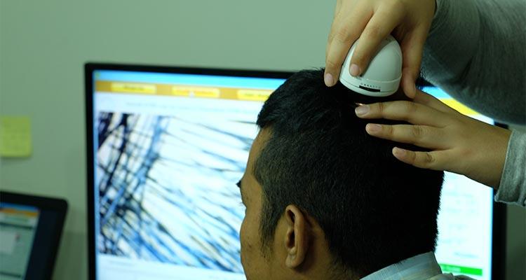 Efek Samping Transplantasi Rambut